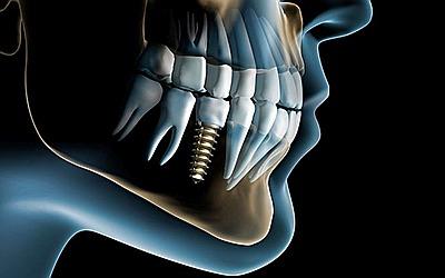 Восполнение зубного ряда - Стоматология «Линия Улыбки»