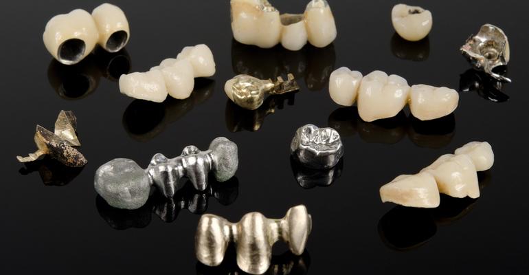 Какие бывают зубные коронки - Стоматология «Линия Улыбки»