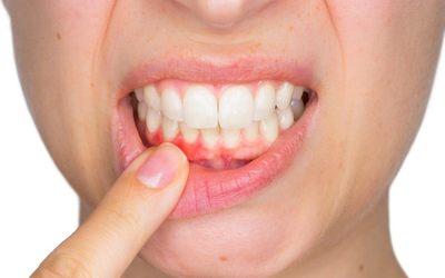 Проблемы с деснами - Стоматология «Линия Улыбки»