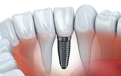 Замена утраченного зуба - Стоматология «Линия Улыбки»