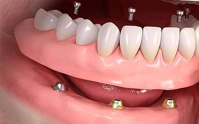 Ортопедическая конструкция - Стоматология «Линия Улыбки»