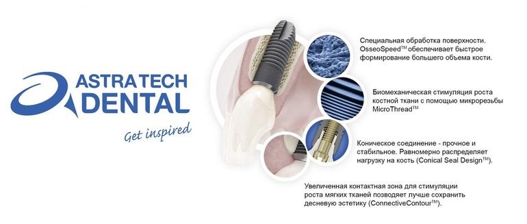 Преимущества Astra Tech - Стоматология «Линия Улыбки»