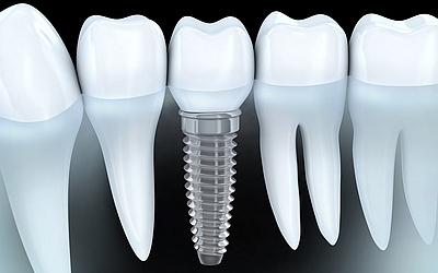 Импланты Astra Tech - Стоматология «Линия Улыбки»
