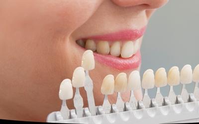 Высокий эстетический результат - Стоматология «Линия Улыбки»