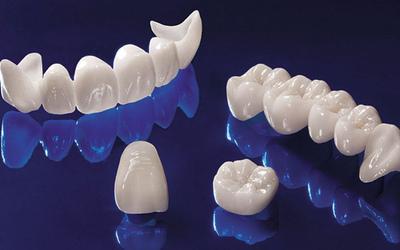 Цена зависит от материала - Стоматология «Линия Улыбки»