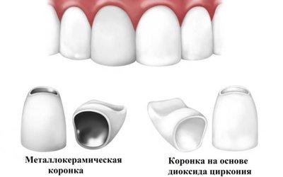 Различия конструкций - Стоматология «Линия Улыбки»