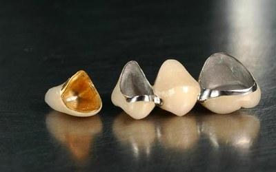 Используются два материала - Стоматология «Линия Улыбки»