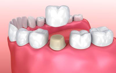 Удаление собственных тканей - Стоматология «Линия Улыбки»