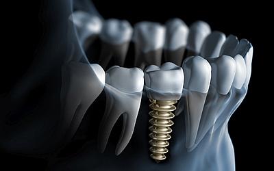 Изображение 1 - Имплант Osstem - Cтоматология «Линия Улыбки»