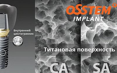 Изображение 2 - СА-поверхность - Cтоматология «Линия Улыбки»