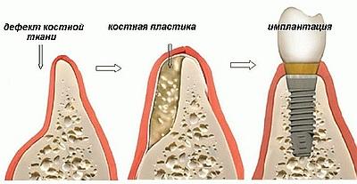 Устранения последствий атрофических изменений - Стоматология «Линия Улыбки»