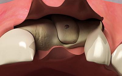Аутотрансплантация - Стоматология «Линия Улыбки»