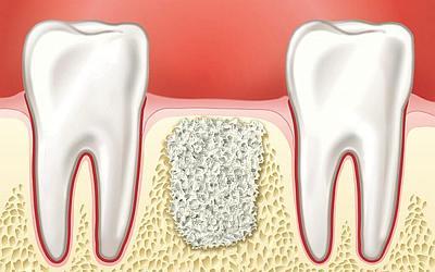 Введение костно-тканевого материала - Стоматология «Линия Улыбки»