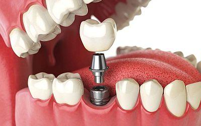 Двухэтапная имплантация - Стоматология «Линия Улыбки»
