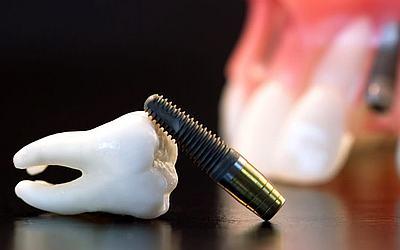 Расчет стоимости имплантации - Стоматология «Линия Улыбки»