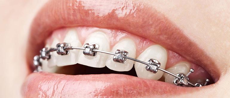 Исправление прикуса - Стоматология «Линия Улыбки»