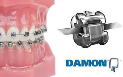 Брекет система Damon - Стоматология «Линия Улыбки»