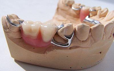 Бюгельные протезы - Стоматология «Линия Улыбки»