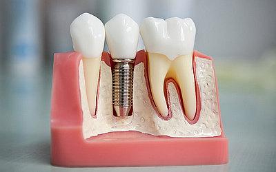 Имплантирование - Стоматология «Линия Улыбки»