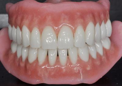 Строение съемного протеза - Стоматология «Линия Улыбки»