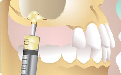 Недостаточный объем костной ткани - Стоматология «Линия Улыбки»