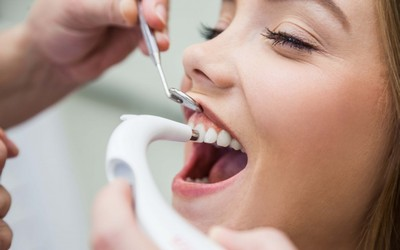 Уход за улыбкой - Стоматология «Линия Улыбки»