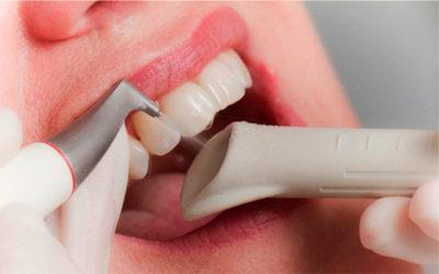 Ультразвуковая чистка зубов - Стоматология «Линия Улыбки»