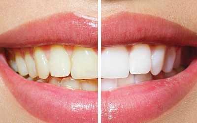 Зубы становятся намного светлее - Стоматология «Линия Улыбки»