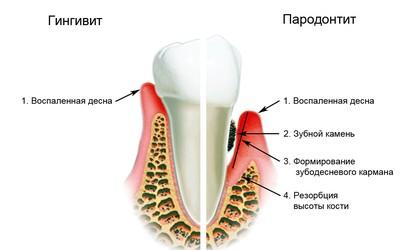 Болезни десен - Стоматология «Линия Улыбки»