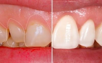 Эстетическая реставрация зубов - Стоматология «Линия Улыбки»