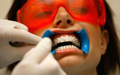 Профессиональное отбеливание зубов - Стоматология «Линия Улыбки»