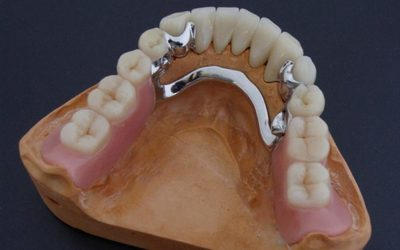 Мостовидный протез - Стоматология «Линия Улыбки»