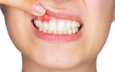 Удалять зуб во время месячных 19