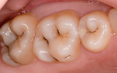 Виды кариеса - Стоматология «Линия Улыбки»