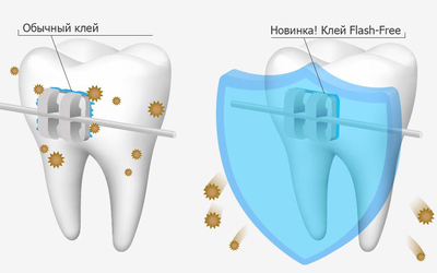 """Защита от бактерий Flash-Free - Стоматология """"Линия Улыбки"""""""