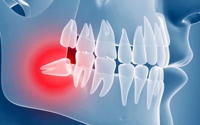 """Удаление зуба мудрости - Стоматология """"Линия Улыбки"""""""