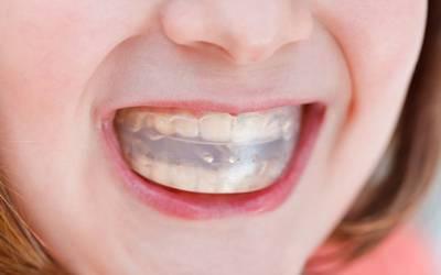 """Трейнеры для зубов - Стоматология """"Линия Улыбки"""""""