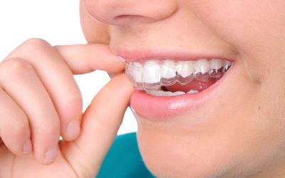 """Элайнеры для зубов - Стоматология """"Линия Улыбки"""""""