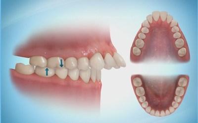 """Неправильное положение зубов - Стоматология """"Линия Улыбки"""""""