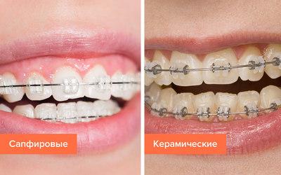 """Керамические и сапфировые брекеты - Стоматология """"Линия Улыбки"""""""