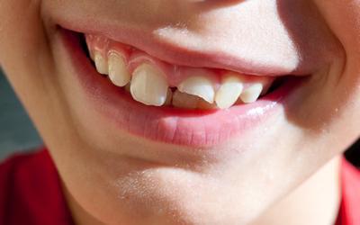 """Что делать, если сломался зуб - Стоматология """"Линия Улыбки"""""""