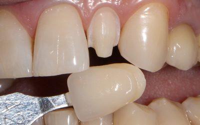"""Наращивание зуба - Стоматология """"Линия Улыбки"""""""
