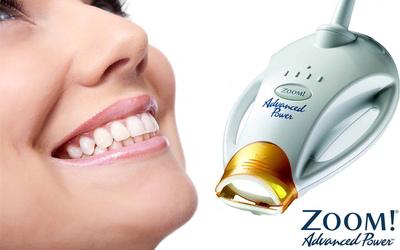 """Отбеливание Zoom - Стоматология """"Линия Улыбки"""""""