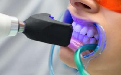 """Ультрафиолетовое облучение - Стоматология """"Линия Улыбки"""""""