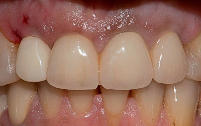 Ограничения к имплантации «Байкон» - Стоматология Линия Улыбки