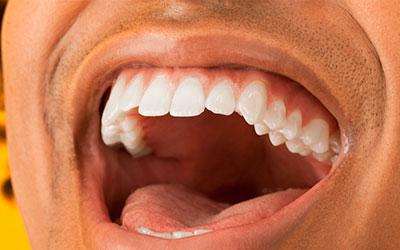 Микрофлора ротовой полости - Стоматология Линия Улыбки
