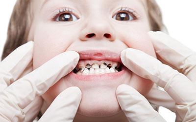 Черные скопления у детей - Стоматология Линия Улыбки