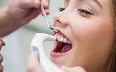 Профессиональна чистка - Стоматология Линия Улыбки