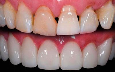 Восстановление любого разрушенного зуба - Стоматология Линия Улыбки