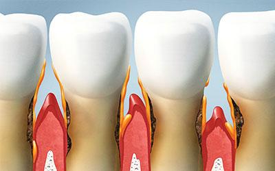 Периодонтит - Стоматология Линия Улыбки